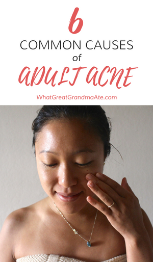 6 Common Causes of Adult Acne