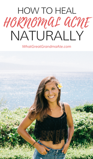 Guest Post- How to Heal Hormonal Acne Naturally