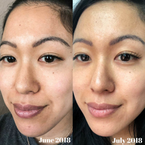 How My Skin Changed Dramatically with Beautycounter's Overnight Resurfacing Peel