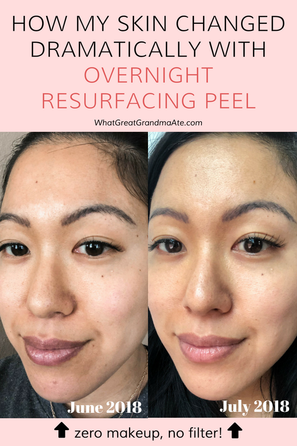 Learn all about Beautycounter's Overnight Resurfacing Peel and the amazing results I gained from using it for a month (includes before and after photos)! #skincare #saferskincare #beautycounter #toxinfree #toxinfreeliving #betterbeauty #acne #skinhealth #oilyskin #dryskin #blackheads #darkspots #wrinkles